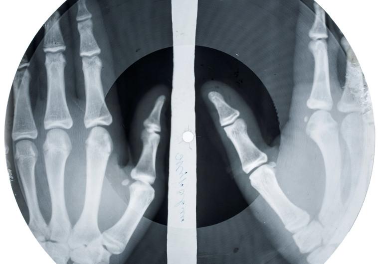 תקליטי הרנטגן בתערוכה