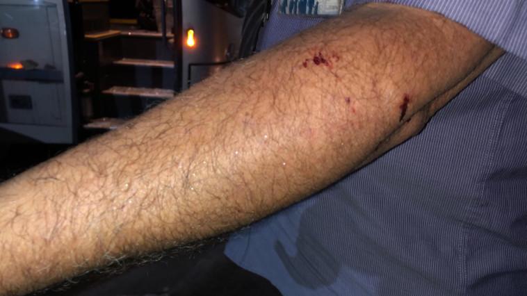 פציעתו של נהג האוטובוס. צילום: מטרופולין