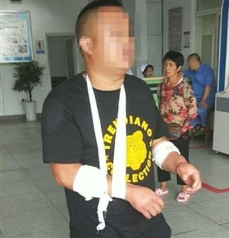 זייף שוד כדי לא לקנות לחברתו מכונית. טאנג בבית החולים