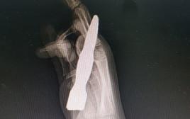 צילום של כף היד