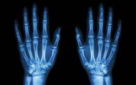 צילום רנטגן
