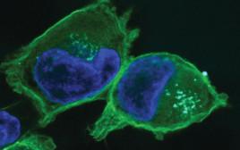 תאים נגועים בסרטן הלבלב