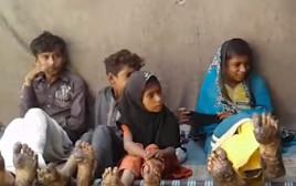 מחלה נדירה פקיסטן