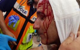 שוטר שנפצע במהלך הפגנה נגד פינוי נתיב האבות
