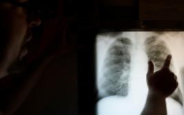 צילום רנטגן של ריאות (אילוסטרציה)