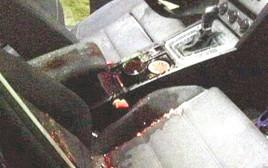 הרכב של עאישה ראבי שנפגעה מזריקת אבנים
