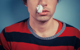 דימום מהאף