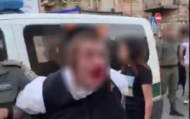 צעיר חרדי אוטיסט נעצר באלימות