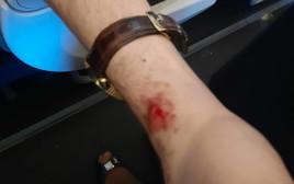 אלימות נגד חסידי ברסלב בקייב