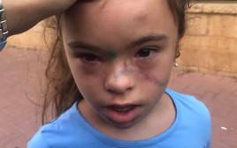 הילדה שהותקפה בצהרון בית הספר בבני ברק