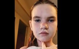 דניאל מקריבן, בת ה-12 שאלרגית למים