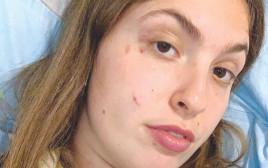 הצעירה שהותקפה על ידי פיטבול