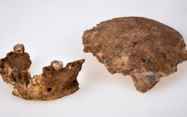 עצמות השלד