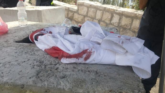 הבגד העקוב מדם שלבש הנדקר בירושלים