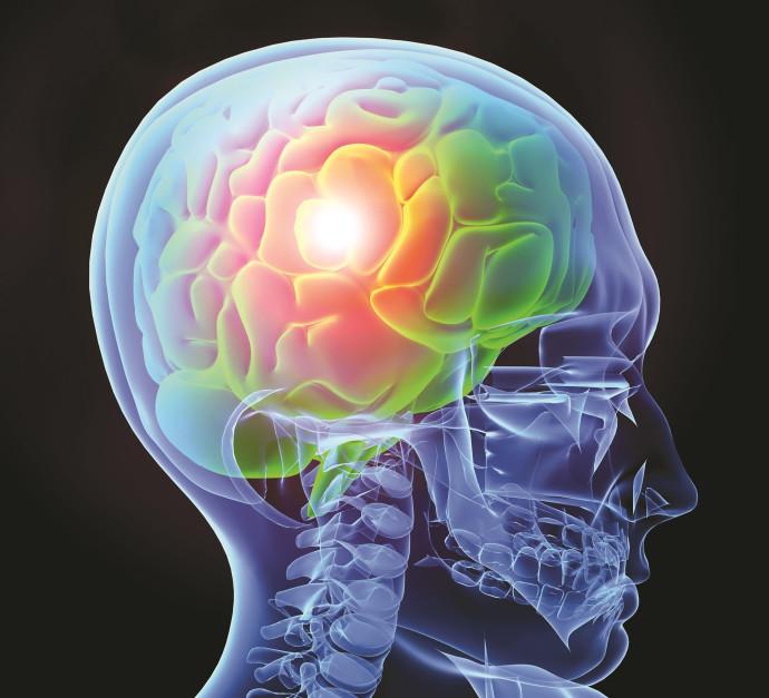 אפילפסיה, אילוסטרציה