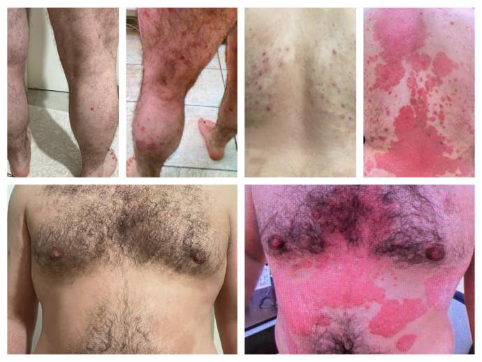 מחלת הפסוריאזיס לפני, במהלך ואחרי הטיפול בסקייריזי