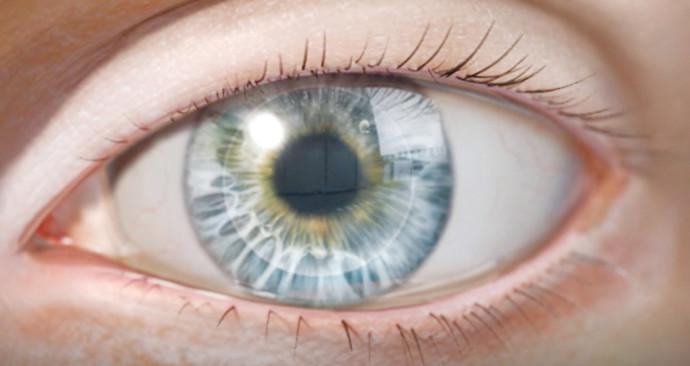שתל מלאכותי לעין של חברת  EyeYon Medical
