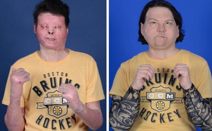 לפני ואחרי, הניתוח להשתלת פנים הראשון בעולם