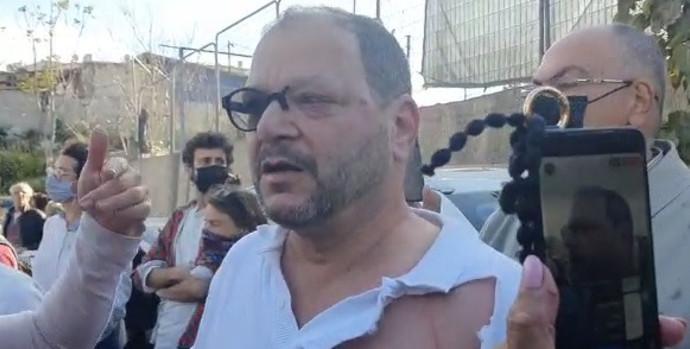 חבר הכנסת עופר כסיף לאחר שהותקף