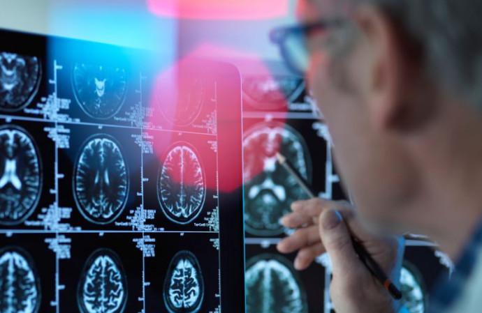 חקר המוח, אילוסטרציה