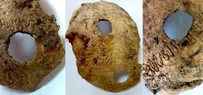 ניתוח מוח בן 5,000 שנה