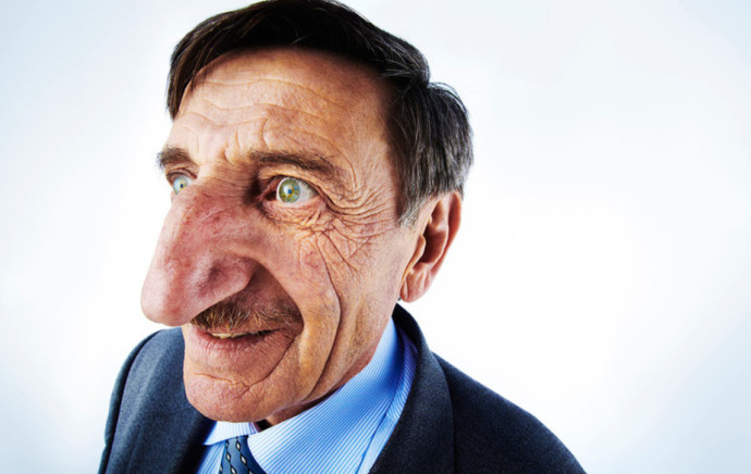 האיש בעל האף הגדול בעולם חוגג עשור