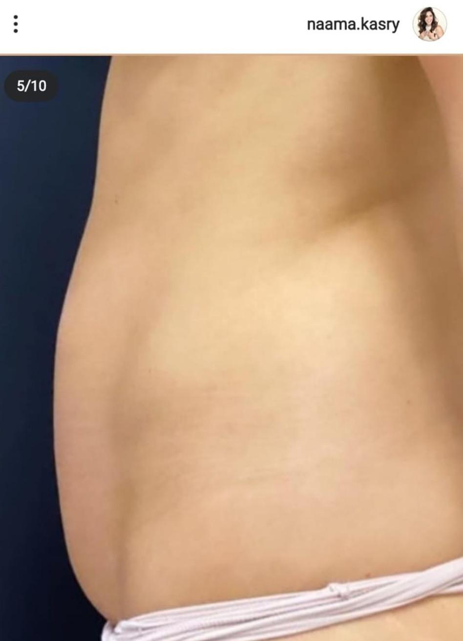 הבטן של נעמה קסרי לפני הניתוח (צילום: צילום מסך אינסטגרם)