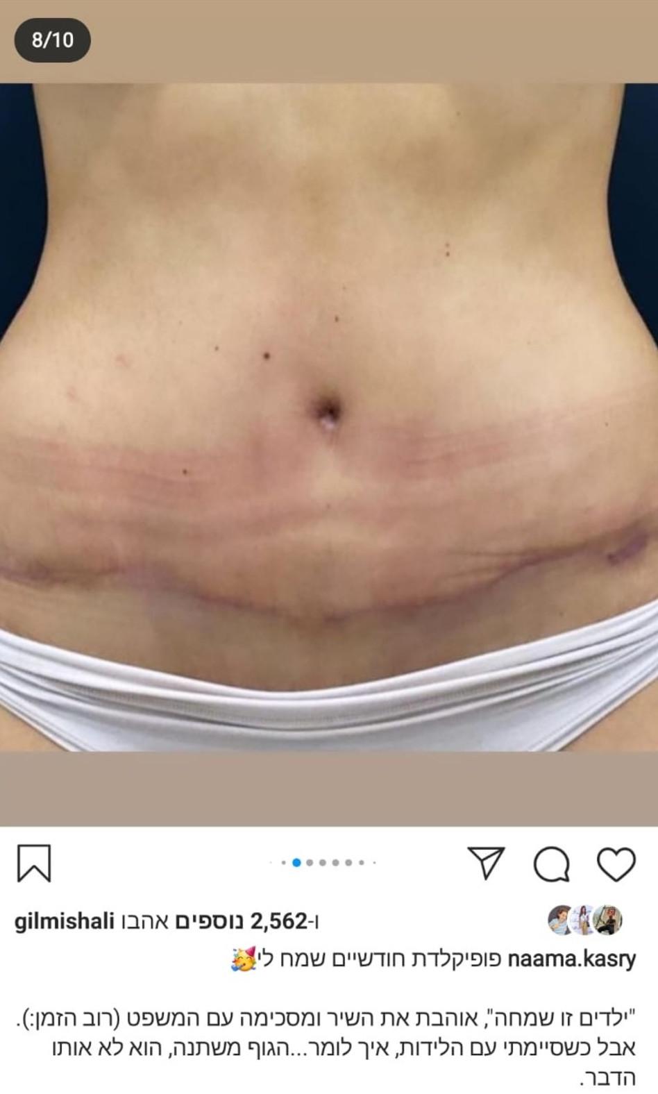 נעמה קסרי אחרי הניתוח (צילום: צילום מסך אינסטגרם)