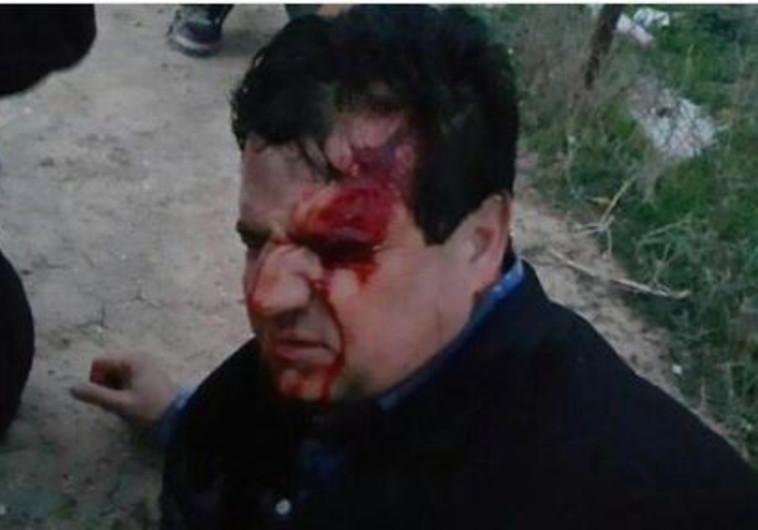"""ח""""כ איימן עודה לאחר שנפצע בעימותים חיראן"""