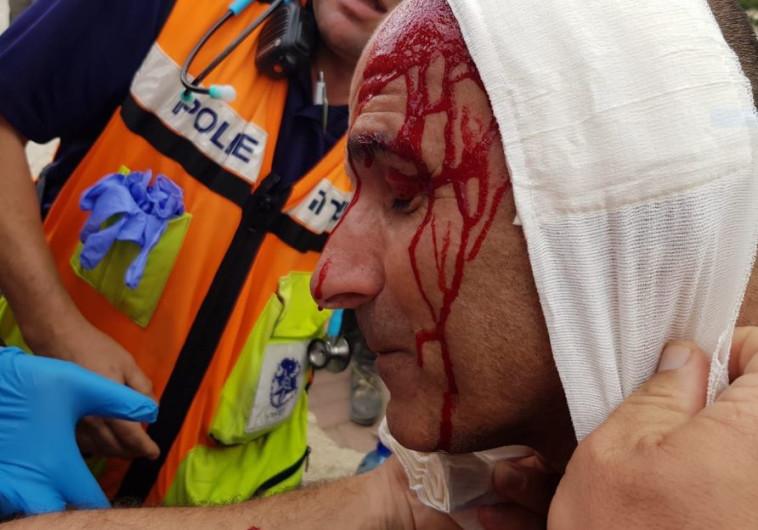 שוטר שנפצע במהלך הפגנה נגד פינוי נתיב האבות . צילום: דוברות המשטרה