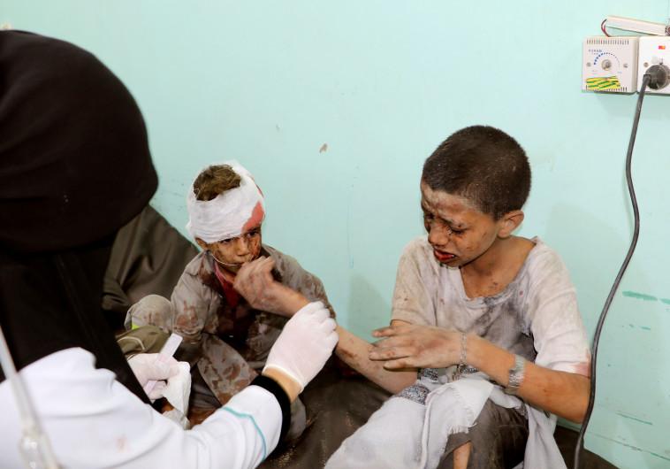 ילדים שנפגעו במתקפה הסעודית בתימן