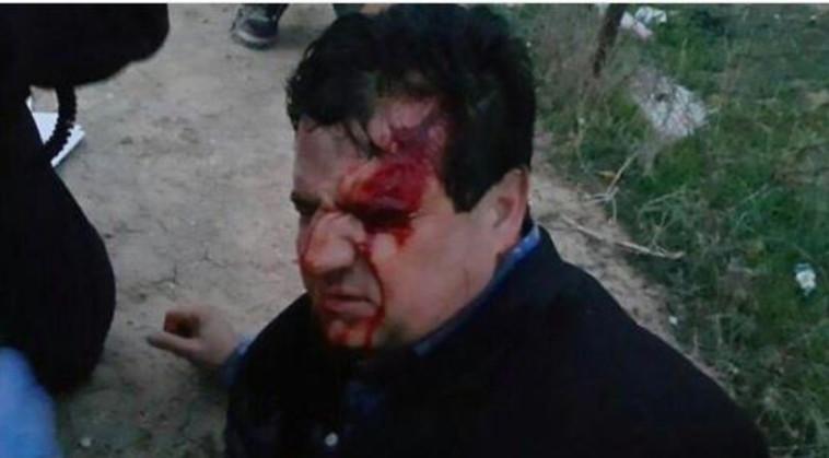 חבר הכנסת איימן עודה אחרי שנפגע בעימותים. צילום: טוויטר