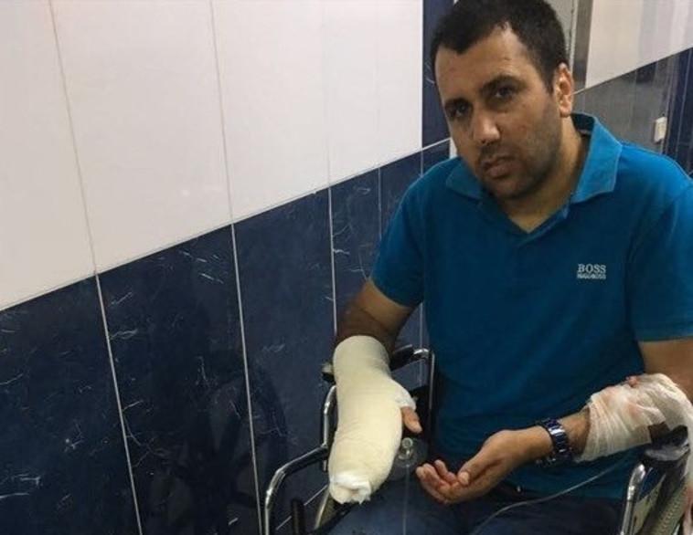 עיתונאי סוכנות הידיעות איי.פי נפצע בידו. צילום: סוכנות הידיעות מען