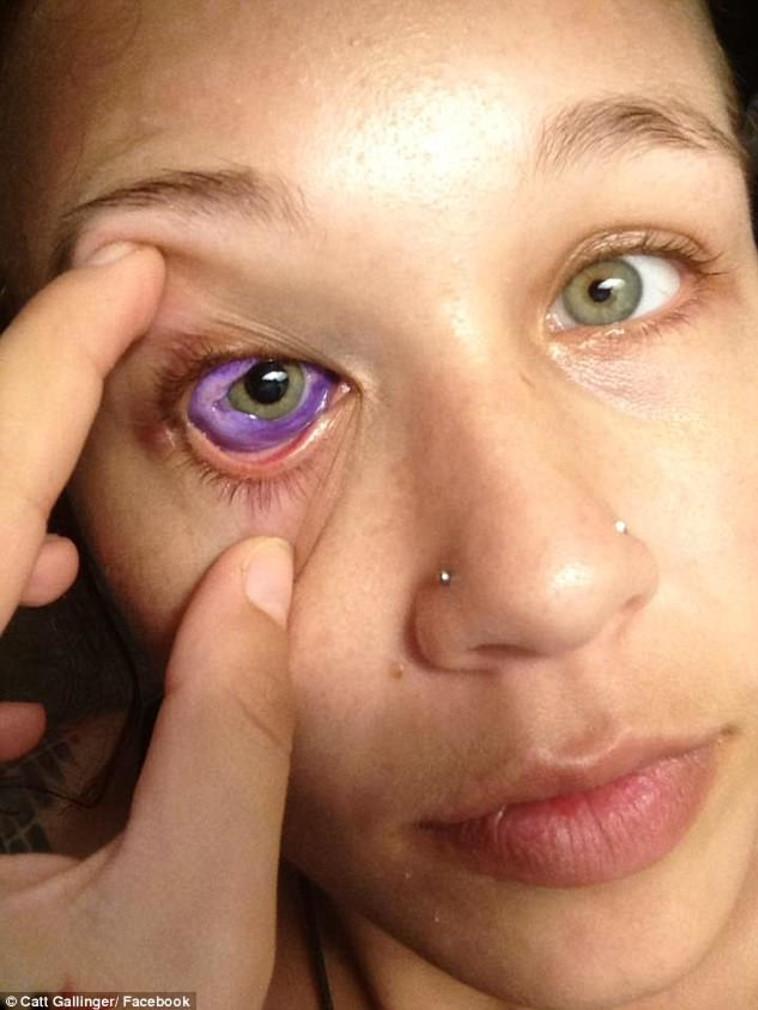 הראיה עדיין מטושטשת ויתכן שתאבד לחלוטין. צילום: פייסבוק