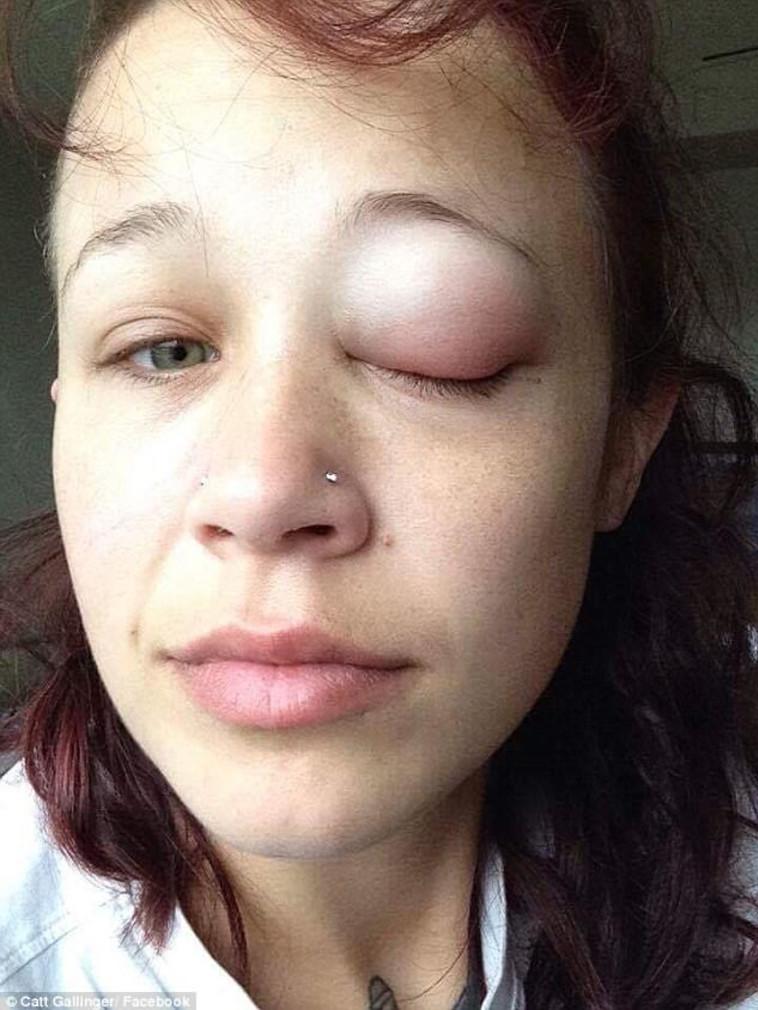 העין התנפחה עוד יותר לאחר קבלת האנטיביוטיקה. צילום: פייסבוק