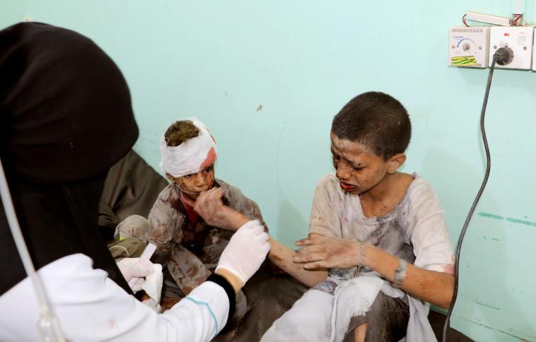ילדים שנפגעו במתקפה הסעודית בתימן. צילום: רויטרס