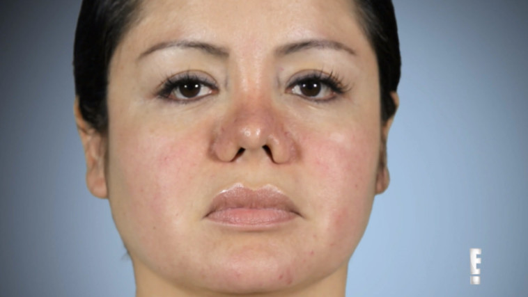 מריאלה אחרי הניתוח באפה. צילום מסך, ערוץ אי