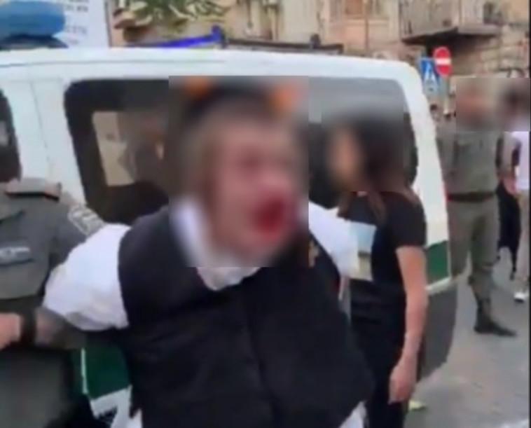 מעצר האוטיסט: בכירי משטרה נועדו עם מנהל מרכז לבעלי מוגבלויות