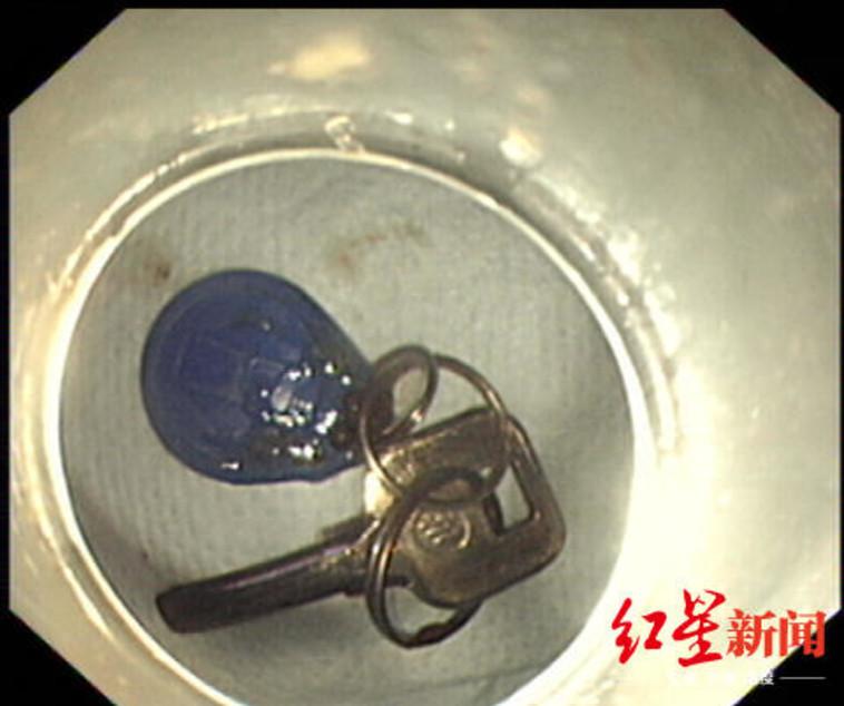 sina.cn :המפתחות לבית והצ'יפ לפתיחת הבניין. צילום מסך