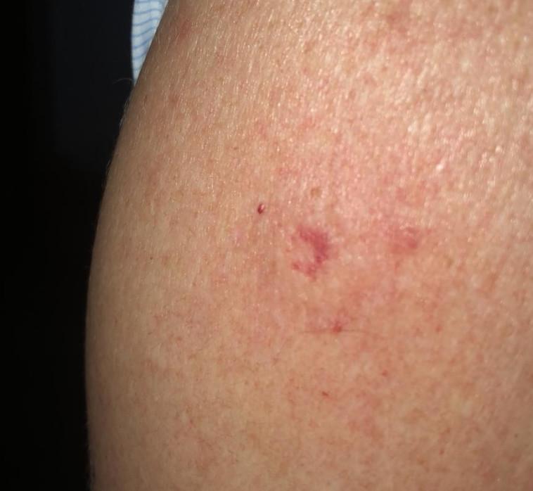 הפציעה מירי כדור האיירסופט באירוע של כחול לבן, באדיבות המצולם