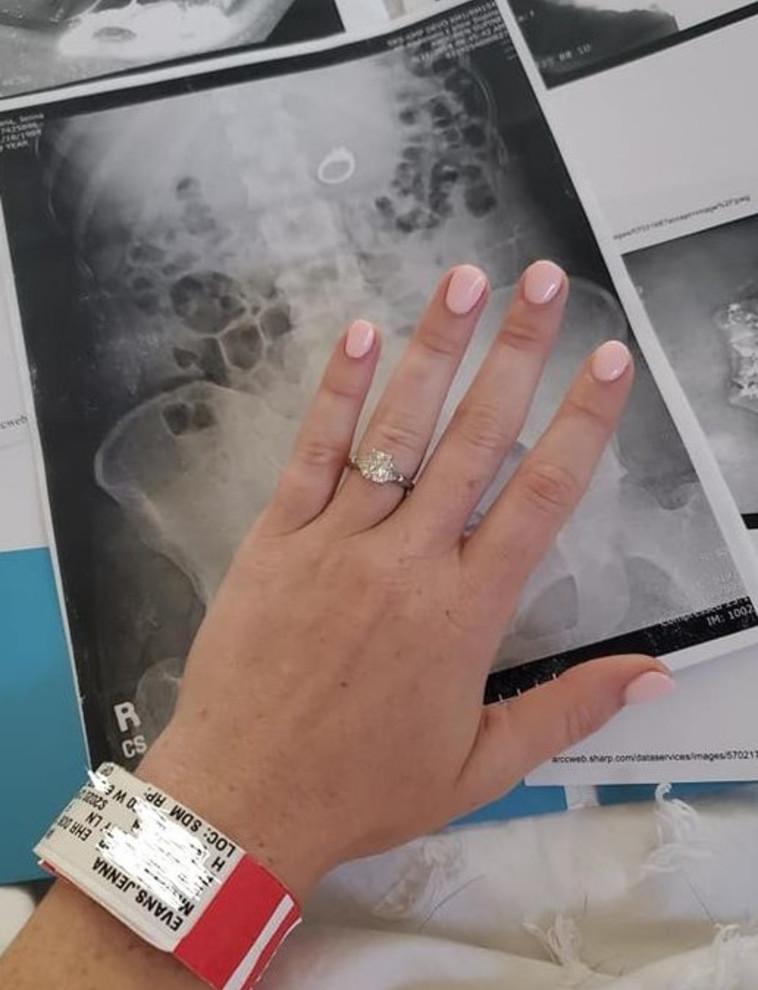 טבעת האירוסים וצילום הרנטגן (צילום:פייסבוק)