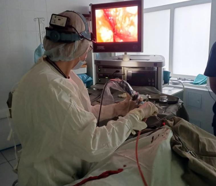 מתוך חדר הניתוח בזמן הרסת המטבע מנחיר אפו של המטופל (צילום: City Clinical Hospital named after M. Konchalovsky)