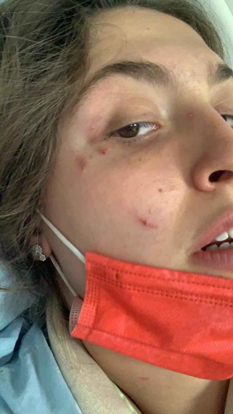 הצעירה שהותקפה על ידי פיטבול (צילום: באדיבות המצולמת)