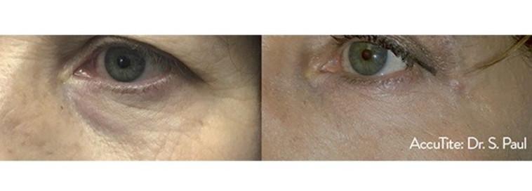 לפני ואחרי AccuTite - צילום: Dr.-Sean-Paul (צילום: יח''צ)