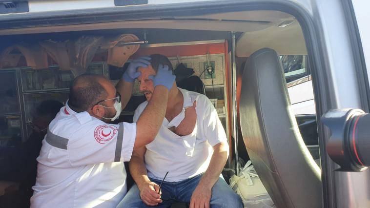 כסיף מטופל לאחר שהותקף (צילום: ניצן רון)