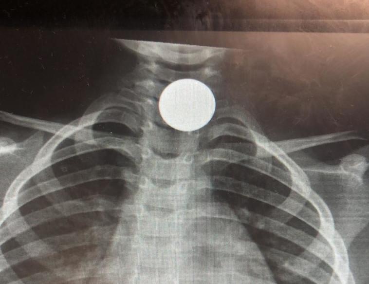 צילום הרנטגן של המטבע (צילום: דוברות בית החולים)