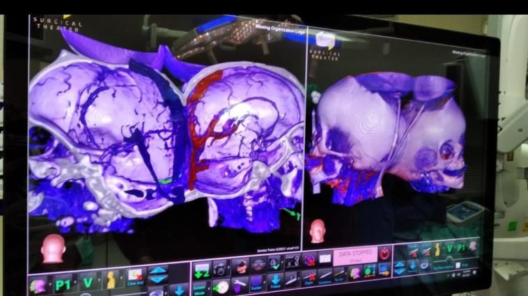 ניתוח הפרדת ראשים (צילום: דוברות בית החולים סורוקה)
