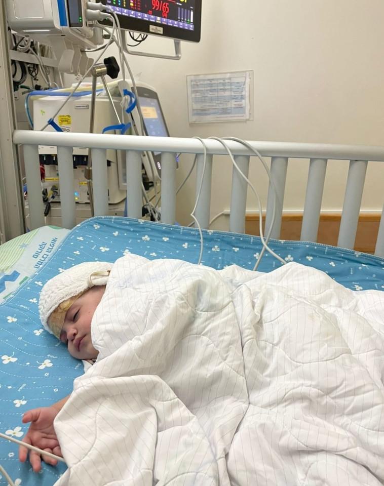 One of the twins who were attached to their heads (Photo: Soroka Hospital spokeswoman)