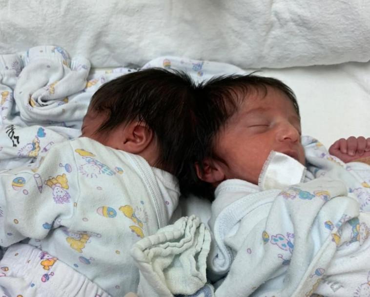 התאומות המחוברות בראשן (צילום: דוברות בית החולים סורוקה)