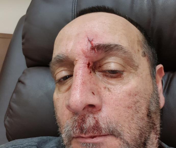 נהג המונית שהותקף בבאר שבע